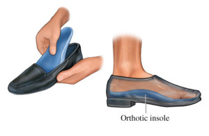 Removable orthotic insoles for plantar fasciitis