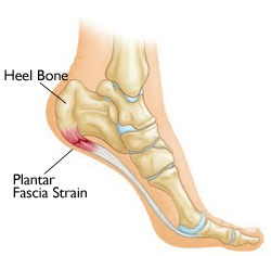 A diagram showing pain in the heel and arch