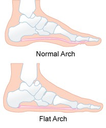 The difference between normal arches and fallen arches