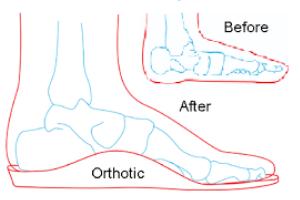 how to fix flat feet e