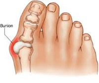 A Typical Bunion